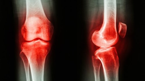 viêm xương khớp