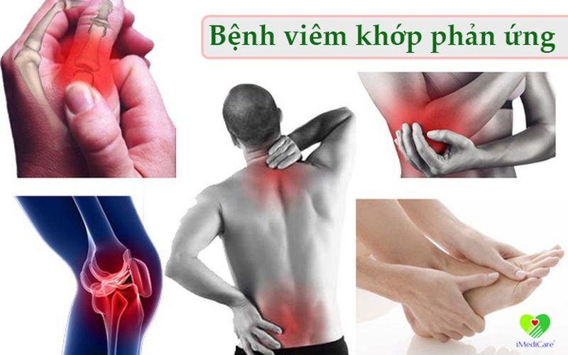 viem-khop-phan-ung