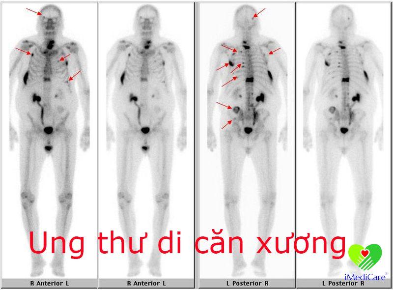 ung-thu-di-can-xuong