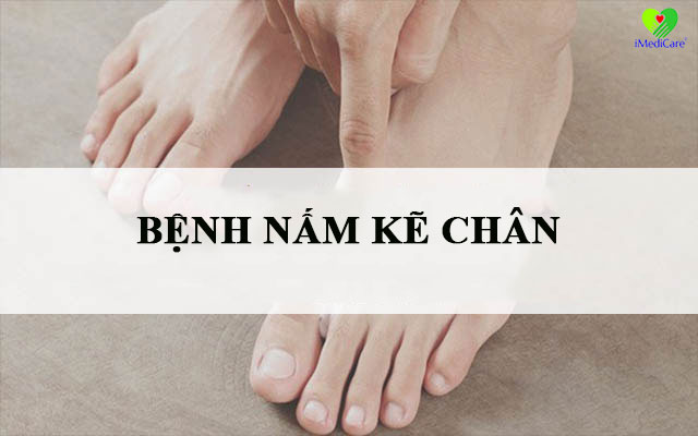 benh-nam-ke-chan