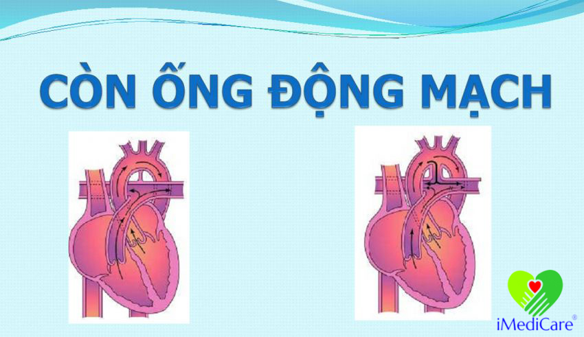 con ong dong mach