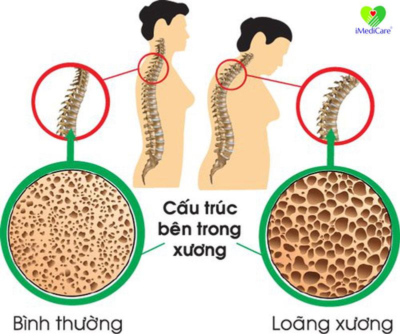 cac-benh-xuong-khop-thuong-gap-o-nguoi-viet-nam